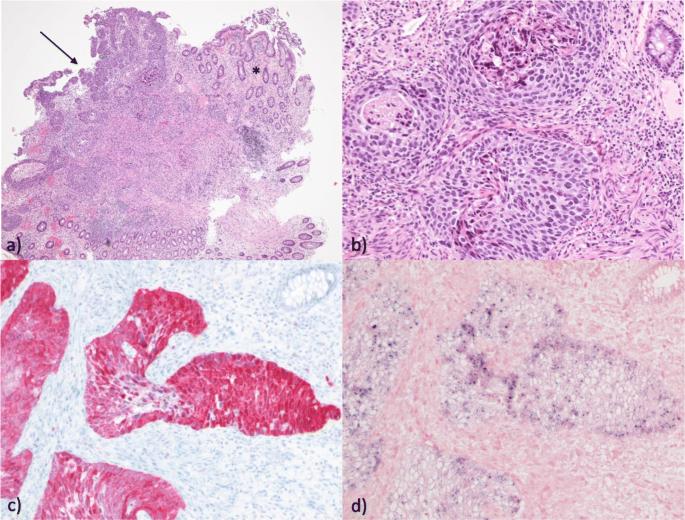 hpv assoziierte tumor