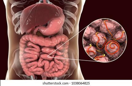 enterobiosis helminthiasis)