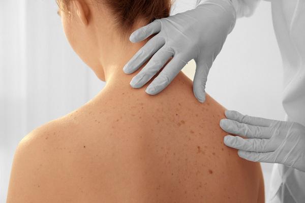 Fertőz-e a bőrrák? (jelige: zsazsa) | Rákgyógyítás