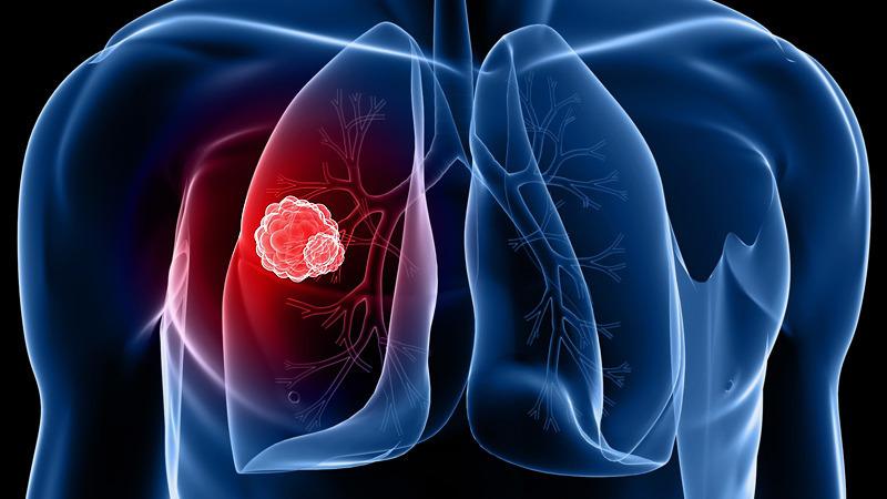 hiv és tüdőrák