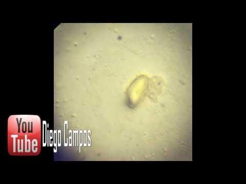 Hogyan kezelik a gömbférgeket felnőtteknél, Egy kicsit a pinwormokról