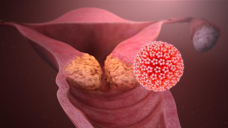papilloma vírus kolonizációja)